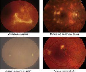 """Clinical retinal photography images illustrating how sight-threatening noninfectious uveitis might manifest in the eye. Inflammation appears as pale white/yellow chorio-retinal spots and/or haziness with """"floaters"""" in the vitreous gel, which fills the posterior chamber of the eye. Inflammation may lead to visual loss and blindness by causing pale, atrophic scarring of the retina, with exposure of the underlying black retinal pigment epithelium."""