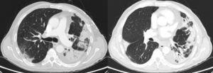 Thorax CT before admission.