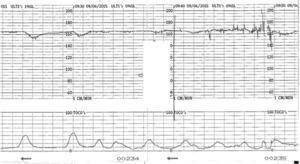 CTG trace showing chronic hypoxia. Note the high baseline, reduced variability and shallow decelerations. Apparent increase in variability seen during vaginal examination (artifact) should not be mistaken for improvement in variability.