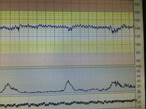 Atypical sinusoidal pattern in foetal-maternal haemorrhage. Note saw-tooth pattern.