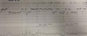 Abnormal foetal heart rate patterns in foetal arrhythmia. Note abrupt change in baseline foetal heart rate.