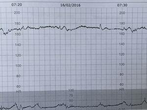 CTG trace in a foetus who has sustained a pre-existing brain injury: foetal stroke.
