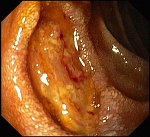 Ulcer in the second part of duodenum.