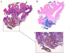 Duodenal mucosa with iron deposition. (A–C) Duodenal ulcer showing extracellular brown crystalline and fibrillar iron deposition over granulation tissue (H&E stain, 40× in A and 100× in C), highlighted by Perls' stain, 40× (B).