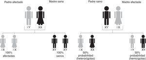 Patrón de herencia en la Enfermedad de Fabry. El gen responsable de la enfermedad de Fabry se localiza en el cromosoma X. Por la forma en que se hereda la enfermedad, los hombres, que tienen un único cromosoma X, no pueden transmitir la condición a sus hijos. Sin embargo, todas las hijas tendrán una copia del gen defectuoso. Las mujeres tienen 2 cromosoma X, uno de los cuales tendrá una copia del gen defectuoso. Las mujeres con enfermedad de Fabry tienen una probabilidad del 50% de transmitir el gen defectuoso a su descendencia, independientemente de si el hijo es niño o niña.
