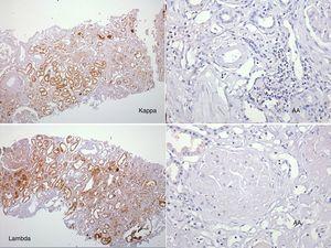 Se efectuó marcación para amiloide AA, kappa y lambda a través de la técnica de inmunoperoxidasa indirecta en el tejido del bloque de parafina, reportándose negativa.
