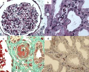 Lesiones histológicas de rechazo mediado por anticuerpos agudo/activo. a) Glomerulitis: células mononucleadas y polimorfonucleares en capilares glomerulares y edema capilar (flecha); b) capilaritis peritubular (flecha): células mononucleares y polimorfonucleares en capilares peritubulares por técnica de PAS; c) microngiopatía trombótica: trombosis arteriolar (flecha) (técnica tricrómicro de Masson); d) C4d positivo en capilares peritubulares (flecha). Inmunohistoquímica (inmunoperoxidasa).