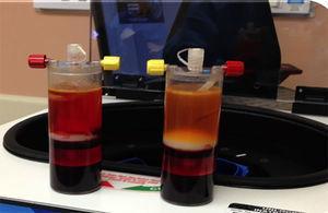 Fotografía luego de la centrifugación de la médula. La capa de la nube (buffycoat) es extraída. En esta capa se encuentran las células madres progenitoras y las proteínas necesarias para incrementar la condrogénesis y reducir la inflamación.
