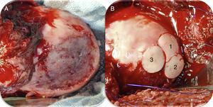 Imagen intraoperatoria de una luxación controlada de cadera izquierda en la que se observa: A) lesión condral en zona de carga de 4×3cm; B) luego de la colocación de 3 aloinjertos osteocondrales frescos (imagen cedida por el Prof. K. Draenert).