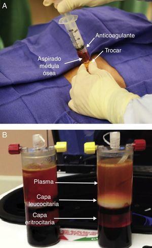Foto demostrando técnica de recolección de médula ósea (A) seguido de BMAC de la muestra con 3 capas definidas (B).