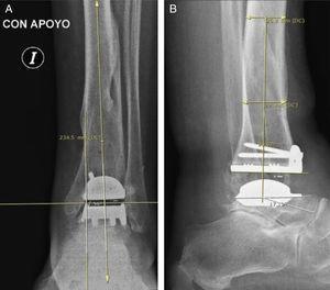 Paciente del grupo 1: artroplastia total de tobillo (ATT). A) Radiografía de tobillo izquierdo, con carga, de frente. B) De perfil. La medición angular entre el eje longitudinal de la tibia y el componente protésico fue realizada según la técnica de Hintermann.