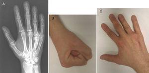 A) Radiografía dorso-palmar de la mano derecha tras 8 años desde el desbridamiento y curetaje del hueso necrótico en la cabeza del cuarto metacarpiano. B y C) Seguimiento final con flexión activa y extensión completas.