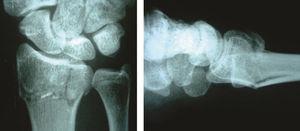 Radiografía anteroposterior y lateral: fractura metafisaria de radio distal, desplazada a dorso y compromiso articular de fosa del semilunar (caso 1-a).