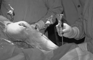 Implante de una ATR mediante MIS y navegación con sistema inalámbrico.