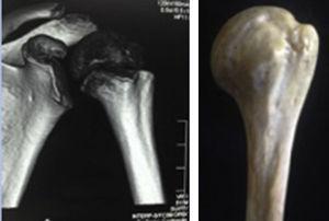 Posición anatómica normal del hombro en vista anterior, en la TC y en el modelo cadavérico.