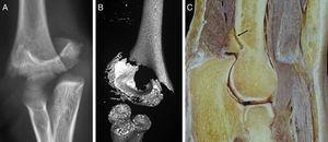 A) fractura supracondílea en «cola de pescado». B) TC- 3D. C) Corte cadavérico en que se observa como el periostio se va afinando a medida que se acerca a la articulación (flecha).