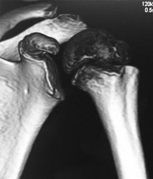 TC-3D que muestra el fragmento proximal en rotación en posición normal, con la corredera bicipital hacia el borde externo.