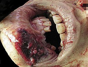 Dental avulsion and lip injuries (case 3, homicide).