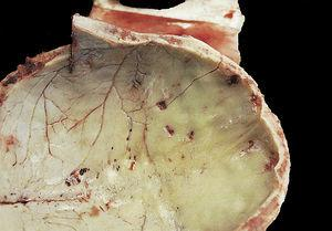 Impact of buckshot on endocranium (case 5, suicide).