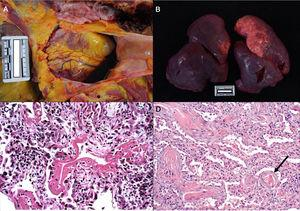 a. Pericardial serosanguinolent bleeding (40cc) in a 70 year-old man. b. Lungs with a combined weight of 1,550g. c. A 77 year-old woman who died of COVID disease 6 days after admission. Mechanical ventilation. Histological image of the lung showing diffuse alveolar damage with hyaline membranes, hyperplasia and pneumocyte descaling, fibroblasts and interstitial mononuclear inflammatory infiltrate (HE, ×10). d. 83 year-old male who died 11 days after admission. The image shows expanded walls with slight inflammatory infiltrate and fibrosis. The arrow points to a thrombosed vessel (HE, ×10).