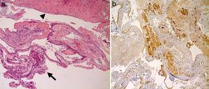 (a) Images of cysts of Rathke's pouch, which show prevailing monolayer columnar epithelium of cystic wall (arrow) with focal phenomena of squamous metaplasia (arrowhead); (b) Proportion of healthy pituitary tissue removed during resection of the cyst wall, visible with immunohistochemical studies that detect the weak positivity for ACTH and FSH.