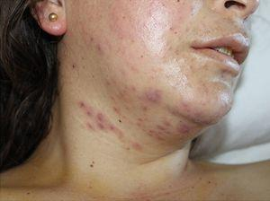 Polymorphic rash with papules, vesicles and erythematous nodules.