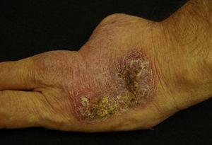 Indurated erythematous plaque with yellowish eschars on the back of the left hand.