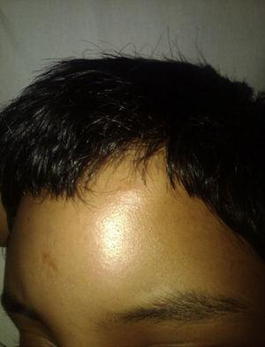 Patient on admission with soft tissue oedema in the left frontal region.