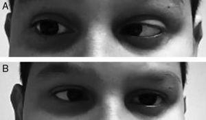 The patient presents an abduction limitation of the right eye in the right lateral gaze (A) and abduction of the left eye in the left lateral gaze (B).