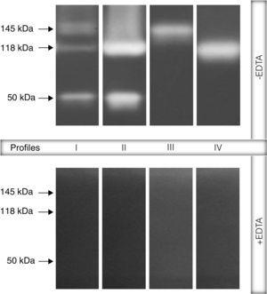 "Representative proteolytic profiles observed in Brazilian clinical isolates of Pseudomonas aeruginosa from different anatomical sites. The proteases were evidenced by electrophoresis on 10% SDS–PAGE containing 0.1% gelatin as the copolymerized protein substrate as described in ""Material and methods"" section. Molecular masses of the proteases, expressed in kilodaltons (kDa), are represented on the left. Four different profiles were clearly seen: profile I, bands of 145kDa+118kDa+50kDa&#59; profile II, 118kDa+50kDa&#59; profile III, 145kDa and profile IV, 118kDa. Galdino et al., 2016."
