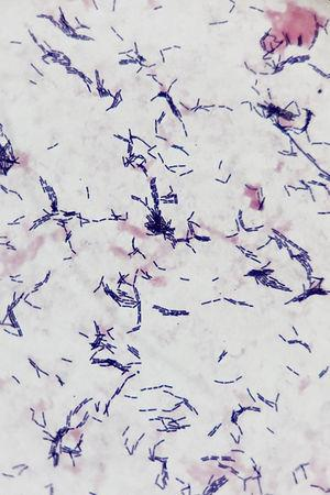 Gram statining of one hemoculture (1000×). The presence of gram-positive, non-sporulating bacilli with a tendency to make short chains is consistent with the Lactobacillus rhamnosus bacteria.