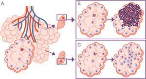 Importance of the location of the infection in the upper lobes. The infection takes place in a pulmonary alveolus (A) but the progression is different in the upper lobe, where the accumulation of bacilli means that the alveolar macrophages (AMs) must deal with a higher quantity of bacilli, generating a response preferentially based on the accumulation of PMN cells (B). In contrast, in the lower lobe, more significant drainage allows a greater distribution of bacilli and an inflammatory response based on the accumulation of AM and monocytes (C).