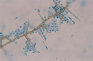 Microscopic analysis with lactophenol blue solution (×400). Conidiogenous cells with funnel-shaped collarets, and cylindrical conidia.
