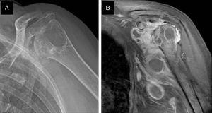 Radiological features of osteoarticular infection of the left shoulder. (A) X-ray demonstrated articular erosive changes, osteopenia and a prominent humeral head cyst. (B) Coronal T1-weighted magnetic resonance images demonstrated profuse articular effusion, osteomyelitis and multiple abscesses in the axillary recess.