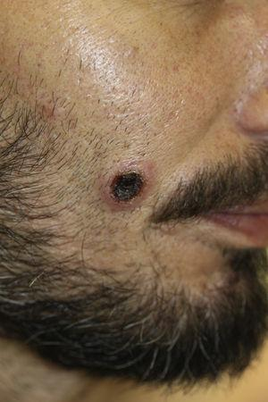 Ulcerated lesion with necrotic centre on the right cheek.
