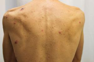 Erythematous papules and more advanced ulcerated lesions on the torso.