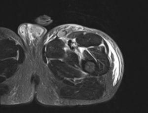 MRI showing interfascial oedema.