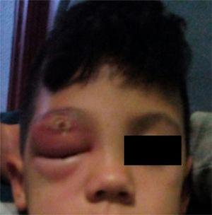 Right palpebral swelling and erythema with a central crusty lesion on the upper eyelid. The photograph was taken on the day that the patient came in to the emergency department.