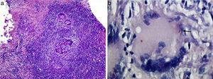 Histology image: (a) a necrotising granulomatous infiltrate (haematoxylin–eosin staining) and (b) acid alcohol fast bacilli (arrow; Ziehl–Neelsen staining) are seen.