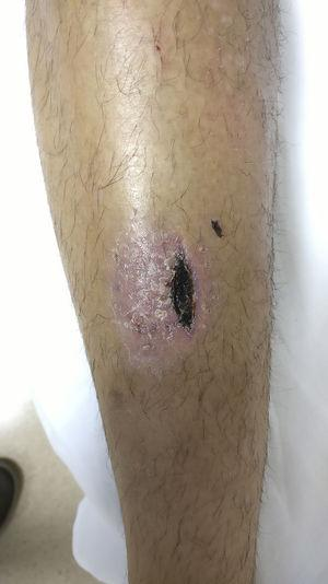 Detail of exudative, scabby lesion.
