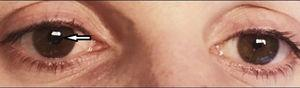Recovery of right pupillary contraction after 10 days of treatment with penicillin G sodium.