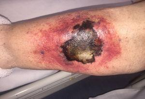 Skin lesion after 48h, with a necrotic centre and erythematous borders, characteristic of cutaneous mucormycosis.