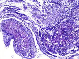 PAS staining. Multiple, tubular PAS-positive structures passing into the wall of a blood vessel are identified.