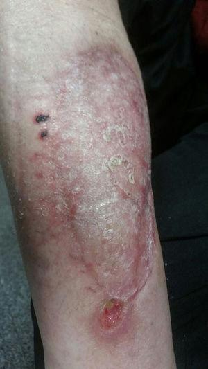 Appearance of the skin lesion 12 weeks after the surgical debridement and the start of antifungal treatment.