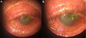 (A) Severe blepharitis. (B) Corneal ulcer stained with fluorescein on transplant.