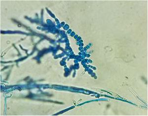 Chlamydoconidia chains characteristic of T. verrucosum in the microscopic examination with lactophenol blue (×40).