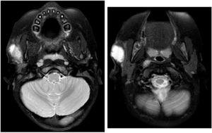 T1 and T2-weighted sequences with gadolinium: septated cystic mass in the right parotid gland compatible with an abscess.