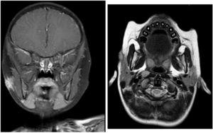 T1 and T2-sequences with gadolinium: change in signal intensity at the anterior pole of the parotid gland compared to subcutaneous lesion with no clear path of the fistula. Compared to the initial study, there is significant improvement with a reduction in lesion size and signal intensity.