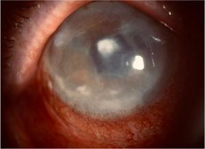 Central leukoma after abscess and stromal and endothelial oedema due to bullous keratopathy.