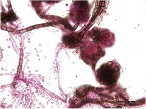 Microscopic view (staining with lacto-fuchsin, ×400). Septate hyphae and pycnidia with conidia inside.